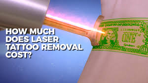 how much does laser tattoo removal cost claudio explains body