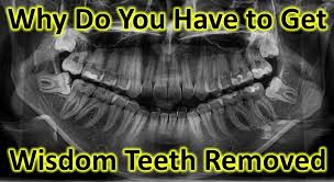 Wisdom Teeth Meme - why do you have to get wisdom teeth removed dentist rancho cucamonga