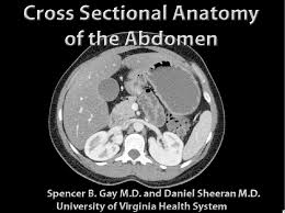 Ct Anatomy Of Brain Ppt Ct Cross Sectional Anatomy Review At Best Anatomy Learn