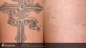 laser tattoo removal landing page skin wellness center of alabama