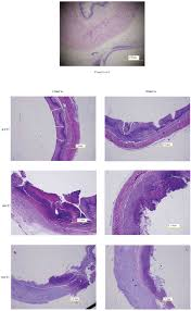 local hyperthermia for esophageal cancer in a rabbit tumor model