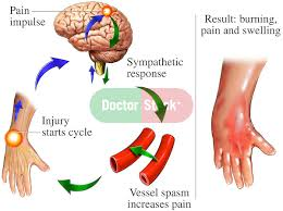 Pain Reflex Pathway Reflex Sympathetic Dystrophy Rsd Diagram Doctor Stock