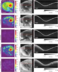doppler optical coherence tomography as a promising tool for
