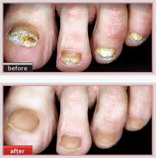 laser nail therapy laser services