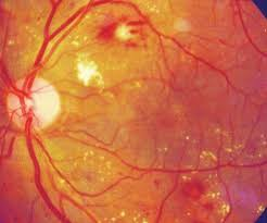 diabetes and diabetic retinopathy
