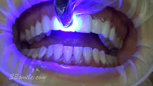 Groupon Teeth Whitening Chicago Helpful Info Archives Cosmeticdentalcare Info