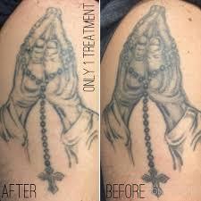 blog u2014 tailored tattoo removal