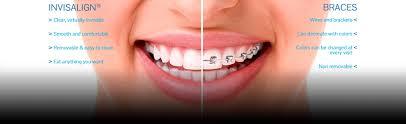 Comfort Dental Las Vegas Orthodontist Las Vegas Nv Invisalign Braces Mountain View Orthodontics