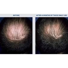 Blu U Before And After Rogaine Men U0027s Minoxidil Hair Thinning U0026 Loss Treatment Foam 3