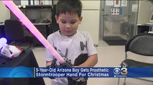 5 year old boy gets prosthetic stormtrooper hand for christmas