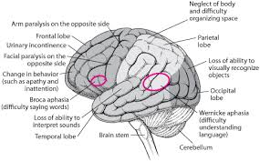 Which Part Of The Brain Consists Of Two Hemispheres Brain Dysfunction By Location Brain Spinal Cord And Nerve