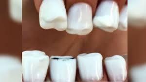 imagenes asquerosas de accidentes video las uñas dientes existen y son asquerosas tele 13