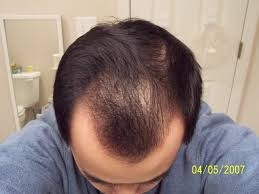 rogaine for women success stories rogaine once a day foam application with pics hairlosstalk forums
