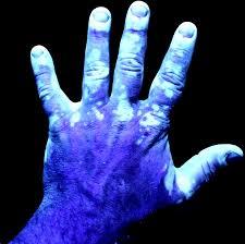 uvb light therapy for vitiligo phototherapy for vitiligo step by step video no 1 youtube