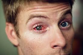 Lasik Long Island Cataract Surgery The Grand Life Cincinnati Eye Surgery