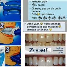 Berapa Pemutih Gigi Whitelight perawatan kulit artis murah pemutih gigi artis whitelight teeth