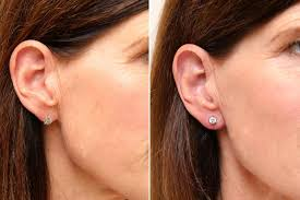 earrings for big earlobes women are now getting filler injected in their earlobes to make