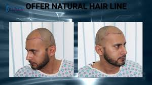 transplant hair second round draft fue hair transplant before and after results procedure steps