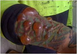 tattoo bacterial infection treatment infected tattoo symptoms causes signs remedies treatment