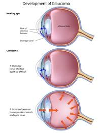 Symtoms Of Blindness Glaucoma Meaning Treatment And Symptoms
