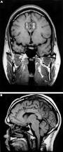 neurosurgery for psychiatric disorders journal of neurology