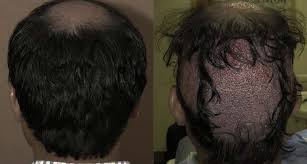 hair transplant in the philppines cost hair transplant clinic manila hair transplant and hair restoration
