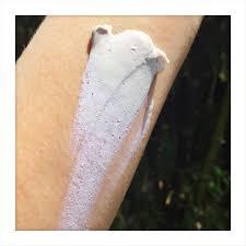 titanium allergy testing skincare lifestyle vmv inskin read articles on skin