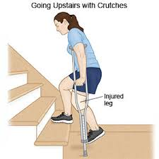 What Should You Not Do When Using A Stair Chair Crutch Instructions Discharge Care What You Need To Know