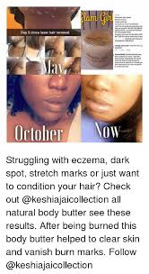 Meme Hair Removal - day 5 since laser hair removal october eliminate dark spots stretch