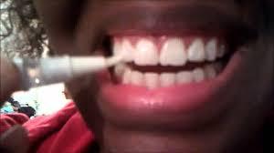dazzling white teeth whitening gel pen review day 3 youtube