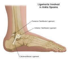 High Ankle Sprain Anatomy Sprained Ankle