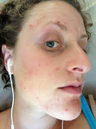 Face Mapping Acne Can Dida I Beat Acne U2022 Performing Woman