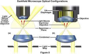dark field microscopy in which objective is the light darker brighter dark field