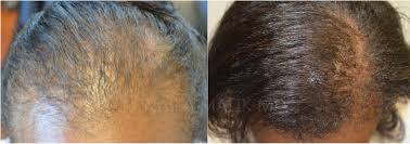 gallery regenerative cosmetic prp acell for hair regeneration