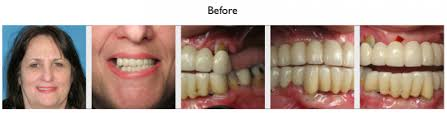 Bridge Dental Cost Estimate by Fixed Dental Implant Bridge Vs Implant Denture What Is The