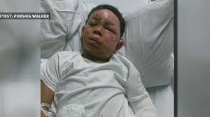 Challenge Nose And N C Boy Suffers 2nd 3rd Degree Burns After Doing