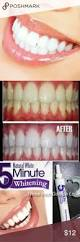best 25 instant teeth whitening ideas on pinterest baking soda