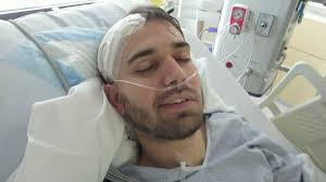 hairstyles brain surgery blogger charles trippy films his own brain surgery for latest