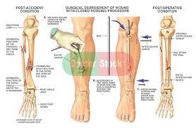 fractured tibia and fibula broken lower leg bones with fixation