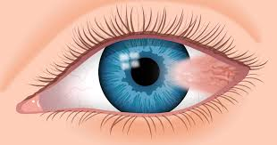 The Blind Spot In The Eye Is Due To Pterygium What Is Surfer U0027s Eye