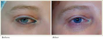 before u0026 after q switched nd yag laser