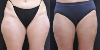 lipo light laser treatment reviews laser liposuction services in new jersey reflections center