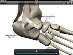 Anterior Fibular Ligament 3d Consultation Delivers Powerful And Efficient Patient Education
