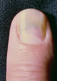 green nail syndrome gns pseudomonas nail infection chloronychia