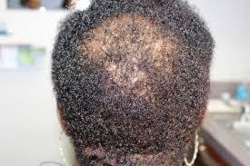 salicylic acid shoo for african american hair newsroom