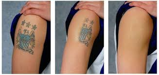 about u2013 laser tattoo removal houston