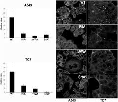 dual role for pilus in adherence to epithelial cells and biofilm