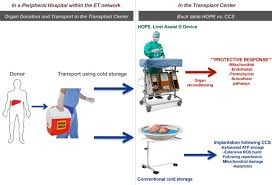 hypothermic oxygenated machine perfusion hope for orthotopic
