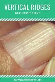 best 25 vertical nail ridges ideas on pinterest vertical ridges
