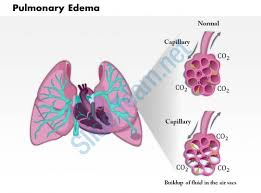 powerpoint design lungs 0814 pulmonary edema medical images for powerpoint powerpoint